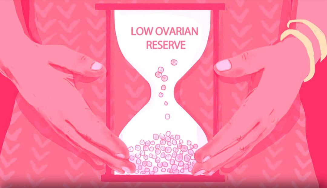 Diminished Ovarian Reserve