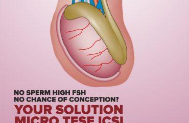 Microdissection Testicular Sperm